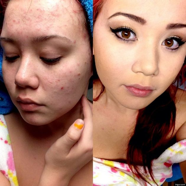 Before-And-After Makeup Photos Show Young Woman's Acne-Ridden Face |  HuffPost Canada