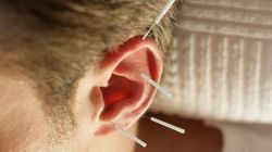 How Sticking Needles In Your Ear Can Help Shed Belly