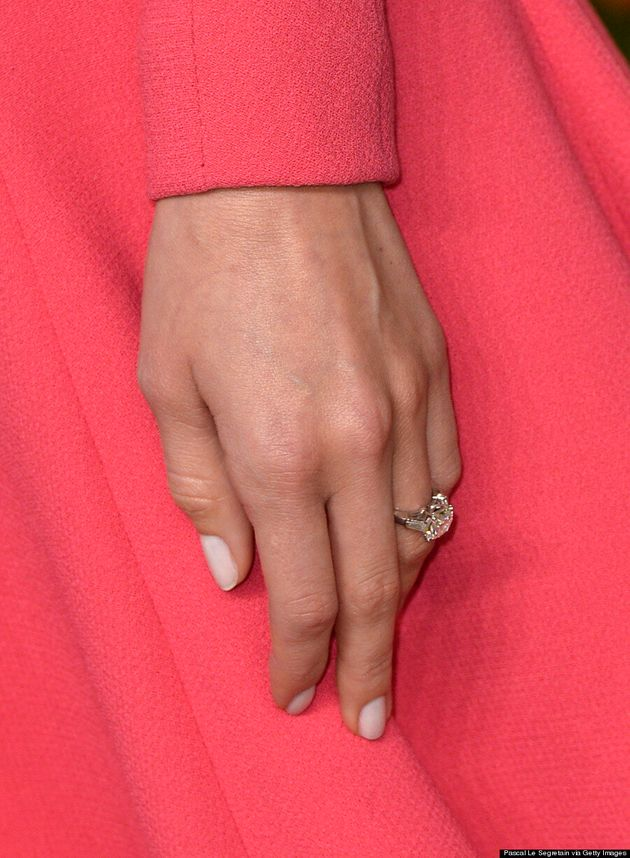 Allison Williams Shows Off Engagement Ring At Vanity Fair Oscar Party
