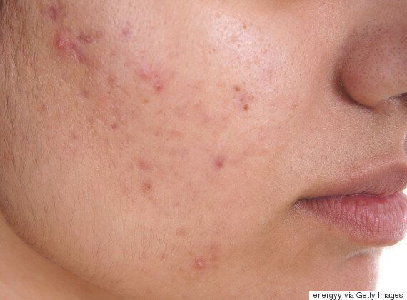 Acne Drug Appears To Slow Down Early MS