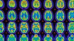 Alzheimer's Memory Loss Reversed In