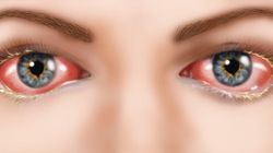 What Is Pink Eye And How Can You Prevent