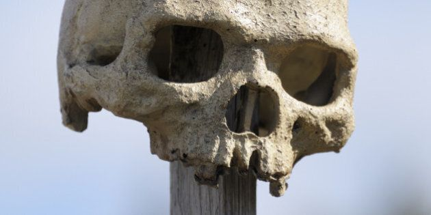 Alberta Family Finds Old Human Skull In Hinton