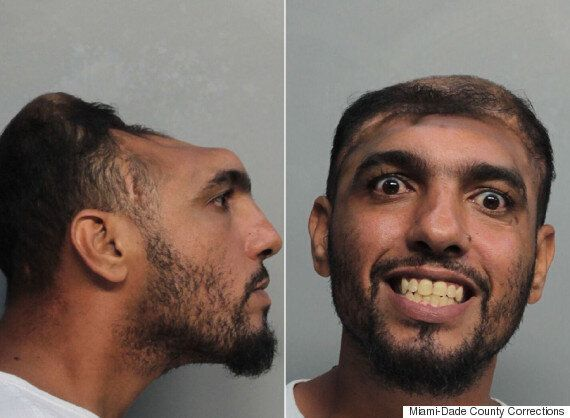 Carlos Rodriguez, 'Half-Headed' Man, Makes News Not For Arrest, But His