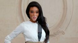 Winnie Harlow Thinks There's Nothing Wrong With Hiding Your