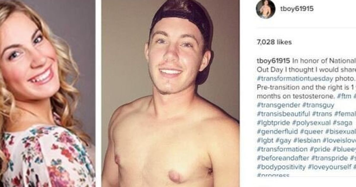 Trans Man's Before And After Photos Prove There's No One Way