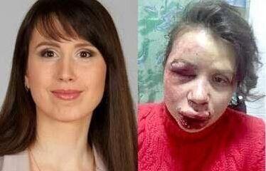 Tetyana Chornovil, Ukraine Journalist, Beaten Badly Amid Spiraling