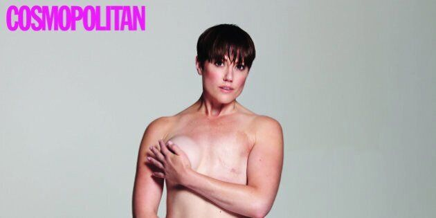 Breast Cancer Survivor Poses Naked For Cosmopolitan
