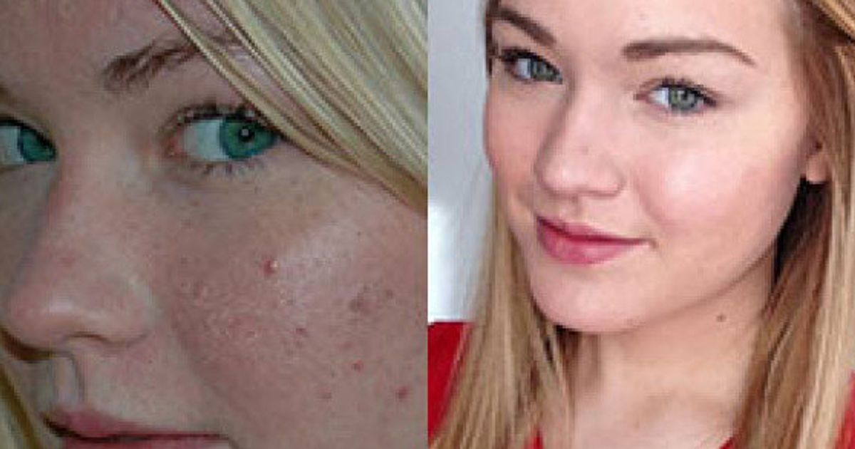 Benefits Of Raw Honey On Skin Reddit User Posts Remarkable Acne Transformation Photos Huffpost Canada