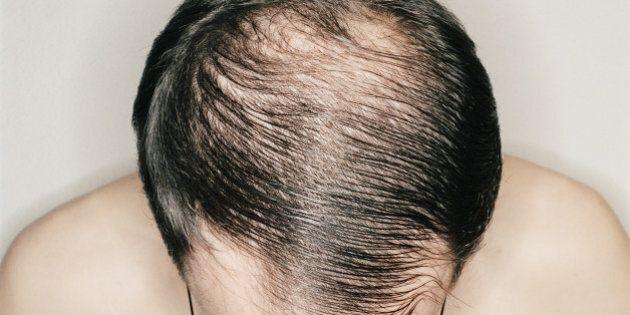 Male Baldness: When Do Men Go