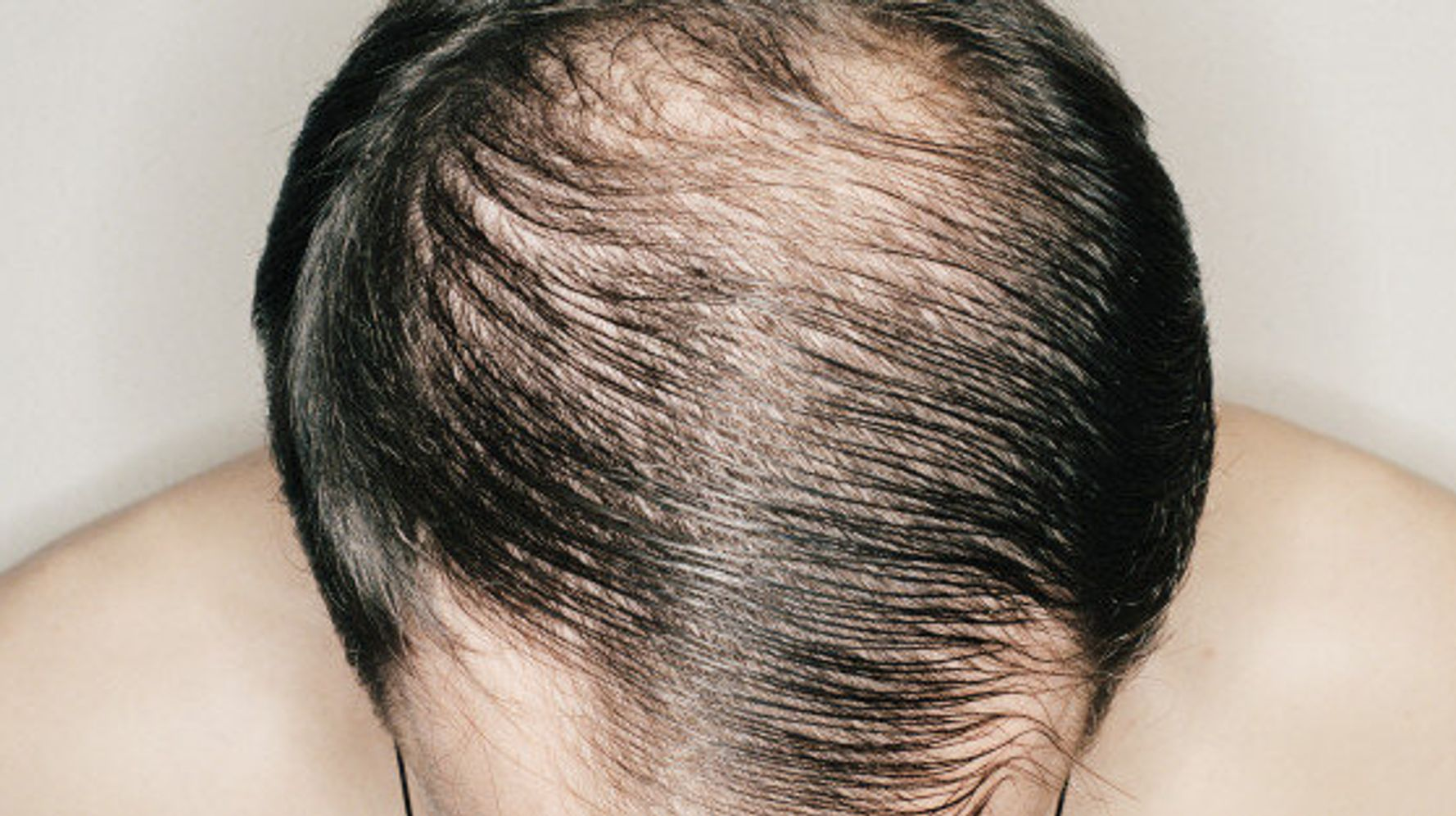 Male Baldness When Do Men Go Bald HuffPost Canada Life