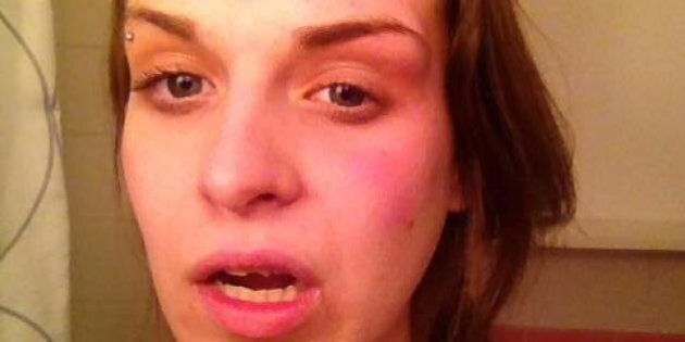 Danielle D'Entremont, Queen's University Student, Attacked After Threats Over Support Of