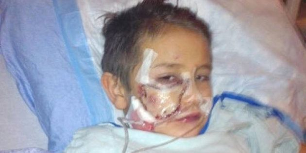 Tyler LeClair Pit Bull Attack: Young Boy Recovers After Being Bitten In Face, Dog's Fate To Be