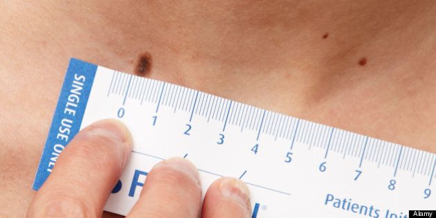 Skin Cancer: 6 Ways To Check Your