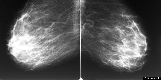 mammogram films of both breasts ...