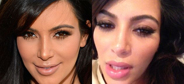 Kim Kardashian Plastic Surgery: Pregnant Star Debuts Plump New Lips (PHOTOS,