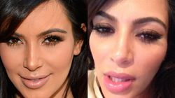 Did Kim Kardashian Get Plastic Surgery While