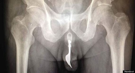 Man Forks Penis: X-Ray Of Urethra Shows Utensil's Unfortunate Resting