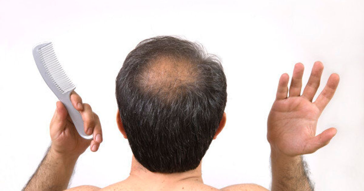 Don't Be Fooled by These Four Hair Loss Treatments