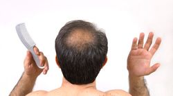 4 Hair Loss Treatments That Do Not