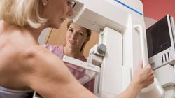 Mammogram Tests Over 50 Can Help — But Can Also