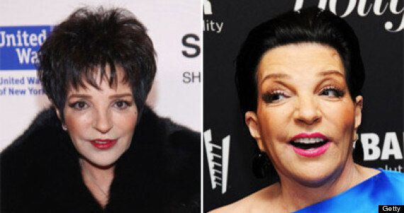 Liza Minnelli Plastic Surgery: 'Cabaret' Singer Is Almost