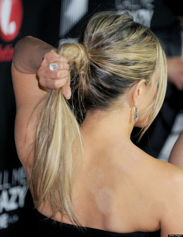 Jennifer Aniston Reveals Cupping Marks At 'Call Me Crazy' Premiere