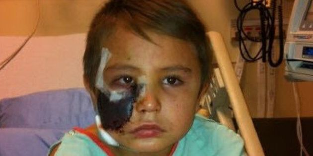 Cochrane Dog Attack: Dog Lunges, Rips Off Part Of Face Of Young Boy, Tyler