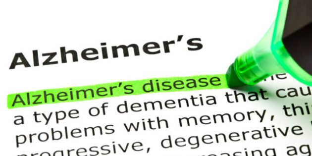 Diseases Of Aging Knock Homicide Off U.S. List Of Top 15 Causes Of