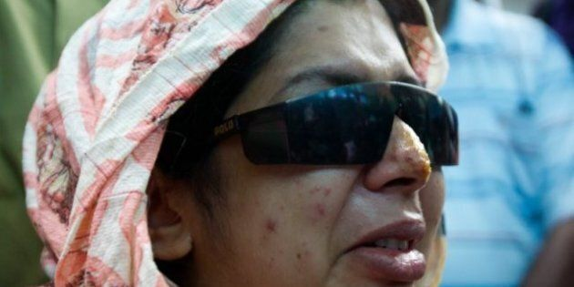 Rumana Monzur Blind For Life, Surgeries Failed To Restore