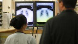 Married Men Seek Care For Heart Attacks Sooner: