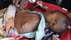 Famine In East Africa A Tragic Case Of Deja