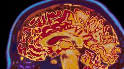 Most New Alzheimer's Sufferers Will be Women - But