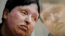 Blinded Acid Attack Victim Spares Attacker