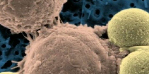 Leukemia Treatment: 'Remarkable' Method Wipes Out Cancer In 2 Patients, Improves A Third
