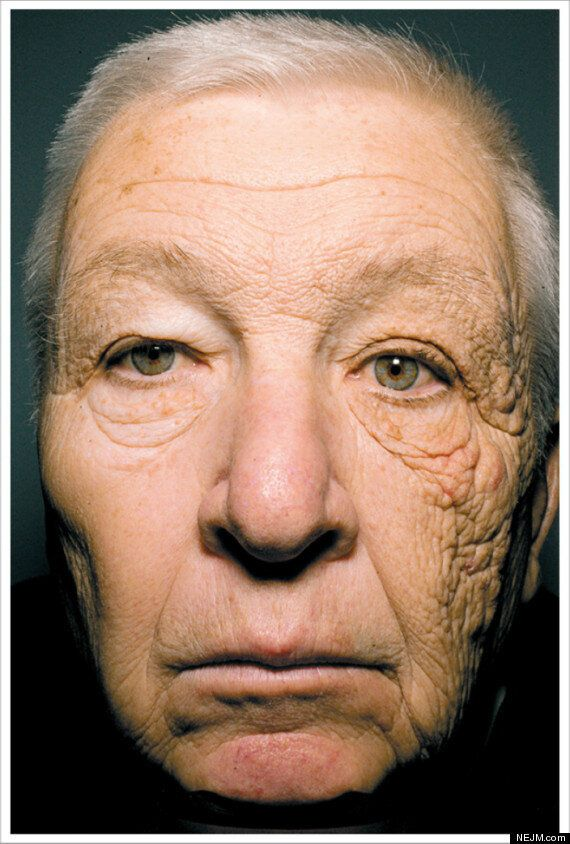 Bill McElligott, Delivery Truck Driver, Has Severe Sun Damage On One Side Of His Face