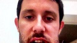 LOOK: NHLer's Jaw Absolutely Mangled After High Stick To Face