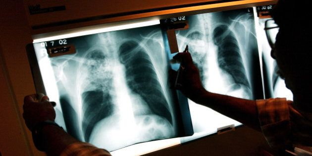 Tuberculosis Confirmed At Scarborough