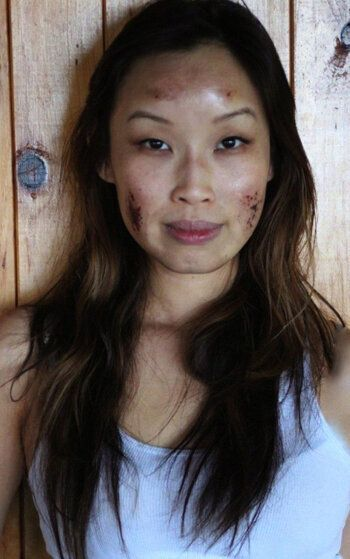 How a Chemical Peel at a