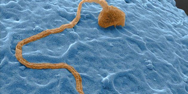 Sperm Ruled An Asset In B.C. Lesbian