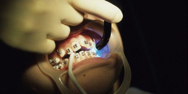 Tung Sheng Wu, Illegal Dentist, Should Face Jail: