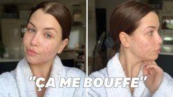 EnjoyPhoenix se dévoile sans maquillage pour parler de son acné