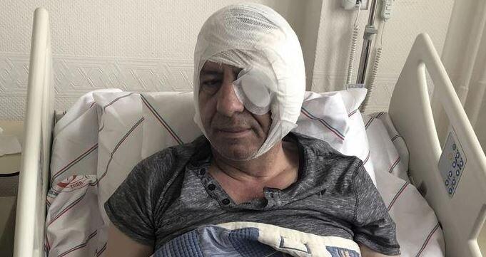 DW: Τούρκος δημοσιογράφος χτυπήθηκε βάναυσα αφότου άσκησε κριτική στον
