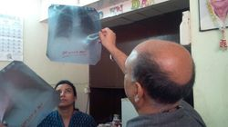New Numbers On Tuberculosis Burden Must Galvanize India To