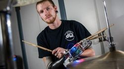 Amputee Drummer's Robot Arm Makes 'Metal Drummers