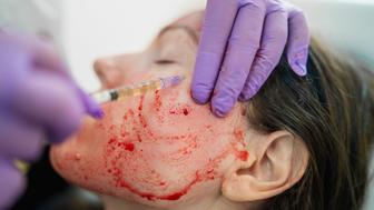 Close-up photo of doctor applying blood plasma during PRP vampire facelift.