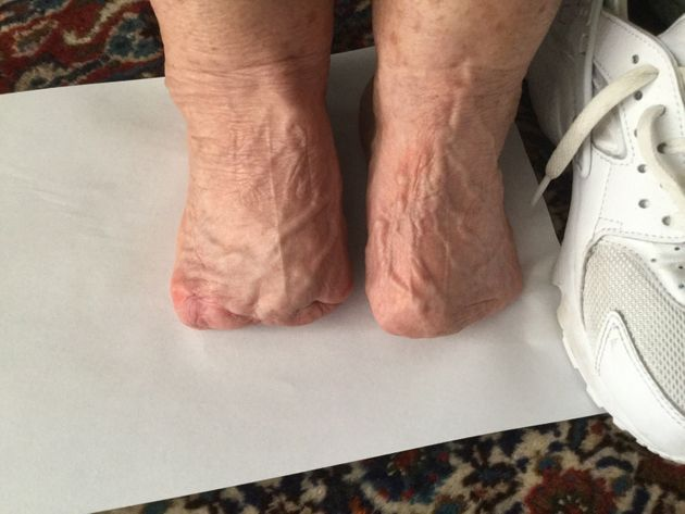 Most of Joan Judge's feet have been amputated after she suffered a severe reaction to Nolotil, which...