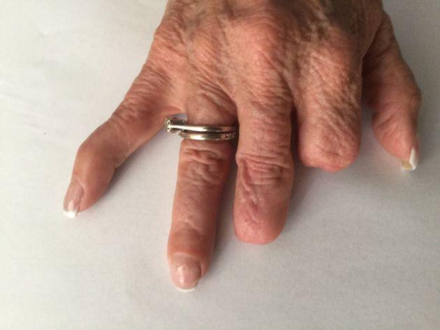 Joan Judge had fingers