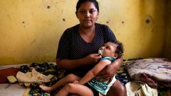 Governo estuda benefício permanente para pessoas com microcefalia decorrente de