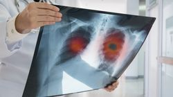 Η τεχνητή νοημοσύνη της Google μπορεί να ανιχνεύσει καλύτερα τον καρκίνο του πνεύμονα από τους